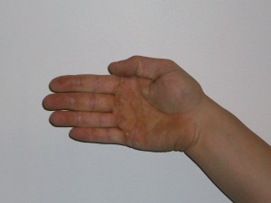ulnar deviation fo the wrist